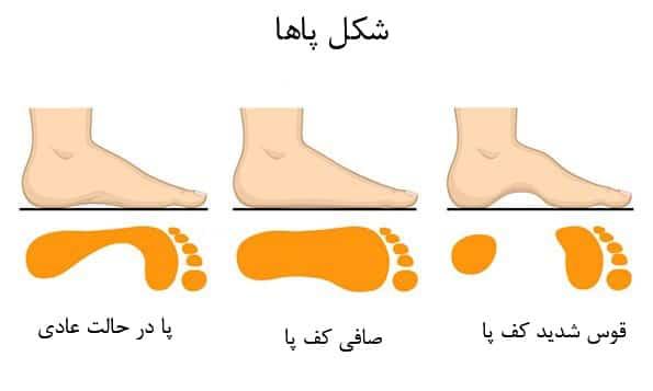 کف پای شما به چه صورت است؟